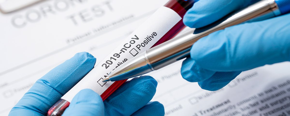 teste de coronavírus no brasil